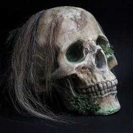 Фото Череп анатомический с остатками волос